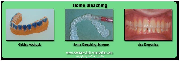 Home Bleaching
