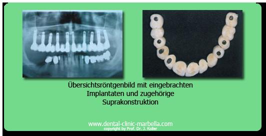 Implant work