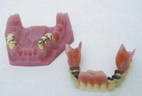 kombinierten Zahnersatz